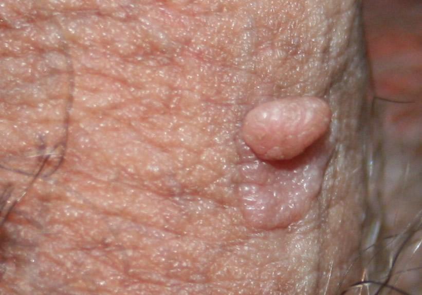 malattie della pelle del pene